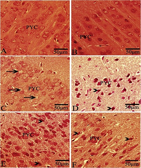 Perinatal Exposure To Energy Drink Induces Oxidative Damage In The Liver Kidney And Brain And Behavioral Alterations In Mice Offspring Sciencedirect