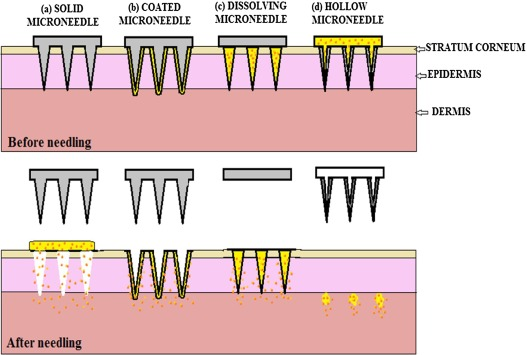 Microneedles: A smart approach and increasing potential for