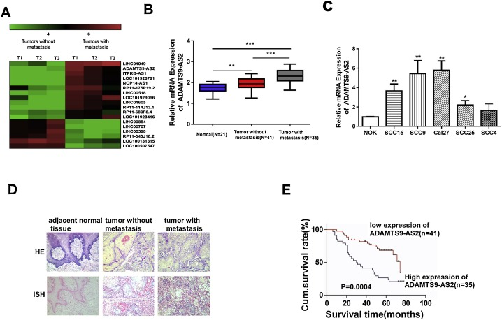 LncRNA ADAMTS9-AS2 promotes tongue squamous cell carcinoma