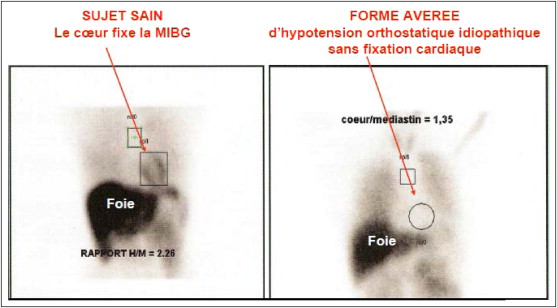 Hypotension orthostatique : quelles explorations cardiovasculaires ...