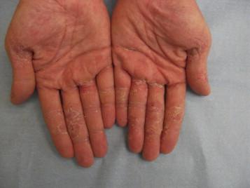 Examen dermatologique des mains - ScienceDirect