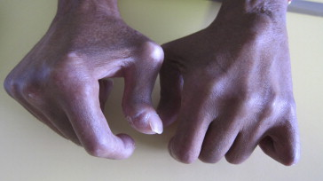 L'atteinte de la main dans la sclérodermie systémique ...