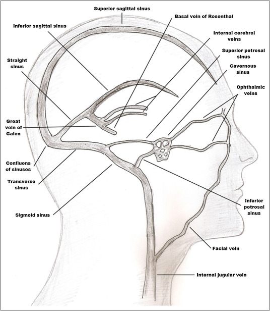 Cerebral Venous Thrombosis Sciencedirect