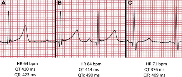 Dynamic QT Interval Changes from Supine to Standing in