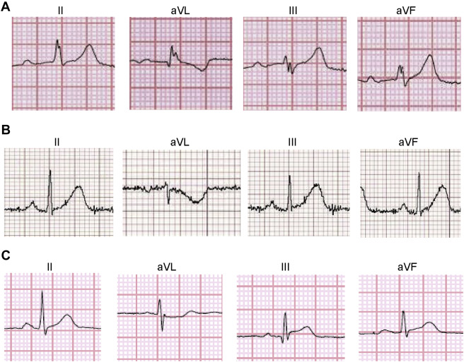 New Insights Into the Use of the 12-Lead Electrocardiogram
