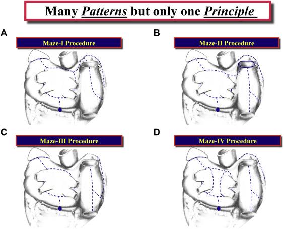 When Is a Maze Procedure a Maze Procedure? - ScienceDirect