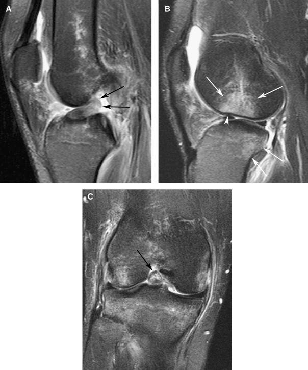 Magnetic Resonance Imaging of Cruciate Ligament Injuries of the Knee ...