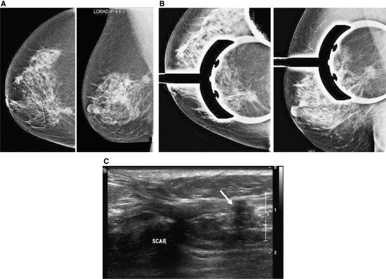Avoiding Pitfalls in Mammographic Interpretation - ScienceDirect