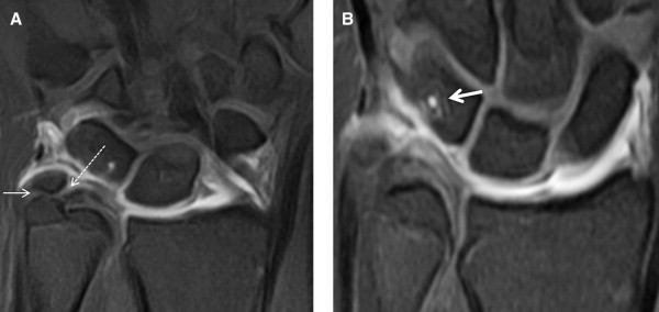 Imaging of Ulnar-Sided Wrist Pain - ScienceDirect