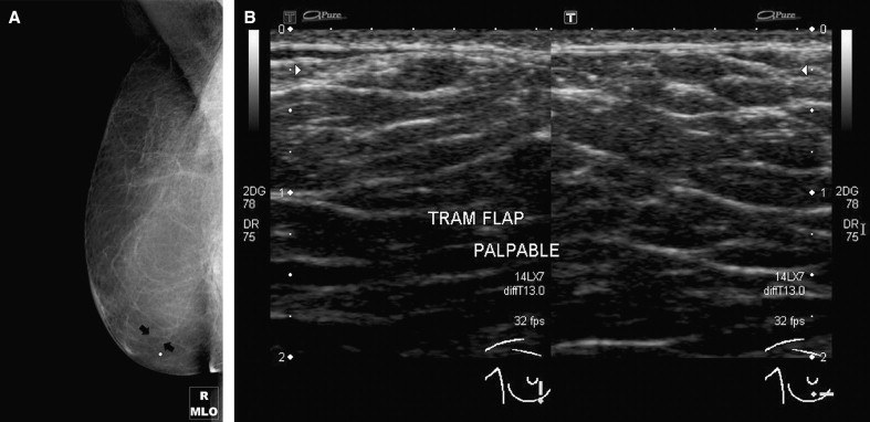 Imaging Approaches And Findings In The Reconstructed Breast A