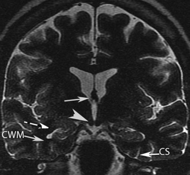 Magnetic Resonance Imaging of the Temporal Lobe: Normal Anatomy and ...
