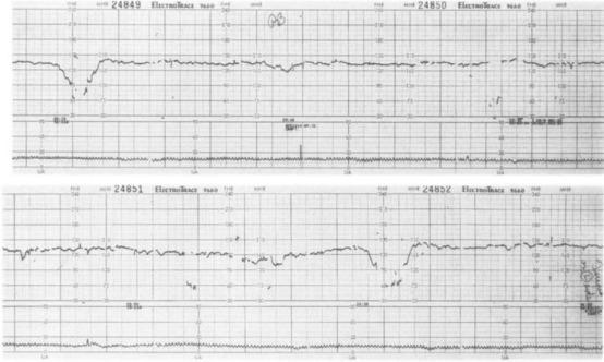 The Jarisch-Herxheimer Reaction In Pregnancy: A Nursing Perspective