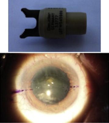 Evaluation of 4 corneal astigmatic marking methods