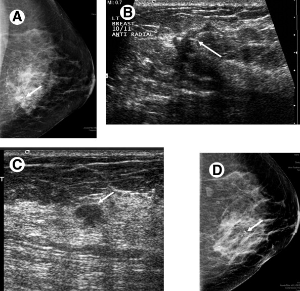 Staging Of Breast Cancer With Ultrasound Sciencedirect