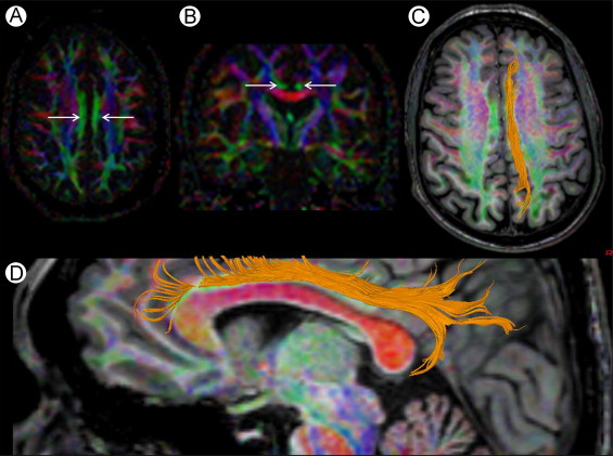 Brain White Matter Tracts: Functional Anatomy and Clinical Relevance