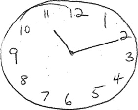 Clock Drawing Performance In Cognitively Normal Elderly Sciencedirect