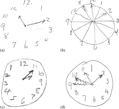 Normative Clock Drawings Featuring Unique Errors Using The Mendez Scoring System A One Of Three Clocks That Did Not Feature Totally Closed Figure