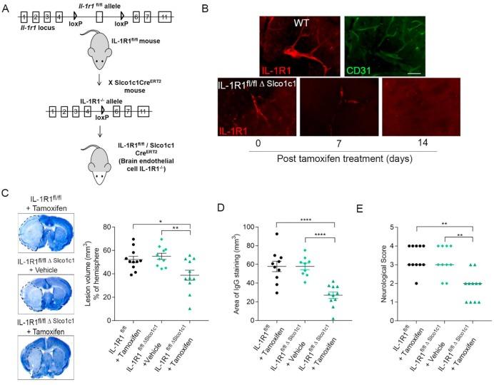 Interleukin-1 mediates ischaemic brain injury via distinct