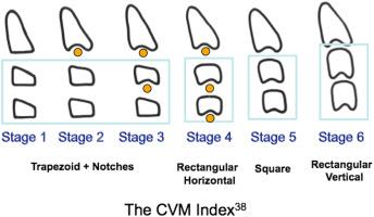 Reliability Of Cervical Vertebral Maturation Staging