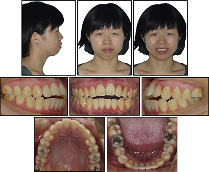 Chin Remodeling In A Patient With Bimaxillary Protrusion And