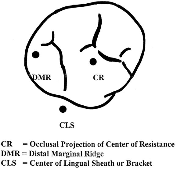 The Effect Of Maxillary First Molar Derotation On Arch Length