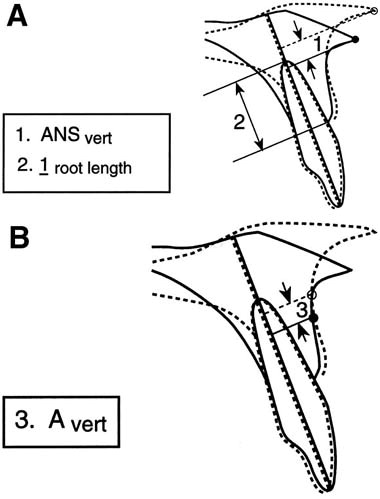 cortical bone remodeling tooth movement ratio during maxillary Ear Infection Impacted Wisdom Tooth download full size image
