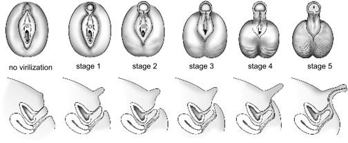 Pseudohermafrodit