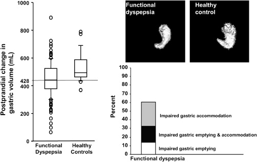 Functional Dyspepsia: Mechanisms of Symptom Generation and