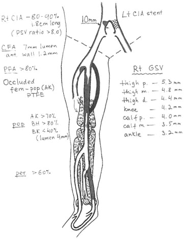 Duplex Arteriography Prior to Femoral-Popliteal Reconstruction in ...