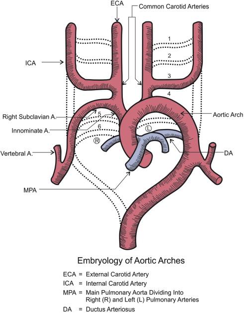 Retropharyngeal Internal Carotid Artery: A Rare Presentation with ...