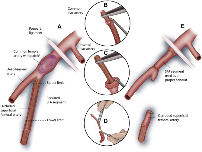 Occluded Superficial Femoral Artery Used For Emergency
