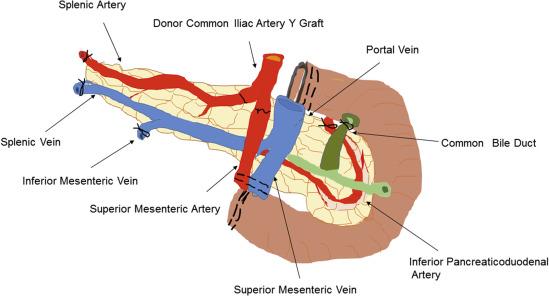 Pancreas Transplant Diagram Online Schematic Diagram