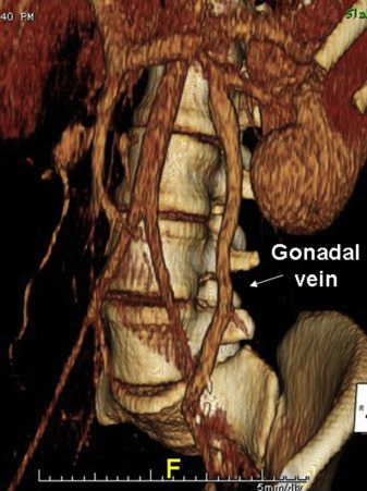 Gonadal Vein Transposition in Nutcracker Syndrome - ScienceDirect