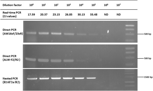 Specific PCR and real-time PCR assays for detection and quantitation