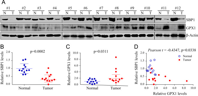 Reduction of selenium-binding protein 1 sensitizes cancer cells to