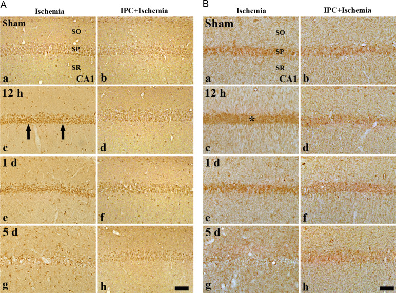 b65fa1f8726f Ischemic preconditioning protects hippocampal pyramidal neurons from ...