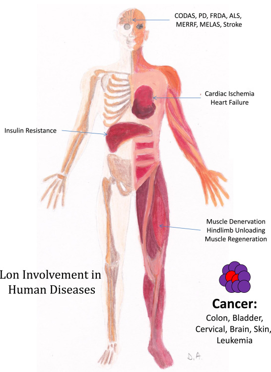 Mitochondrial Lon protease in human disease and aging: Including an ...