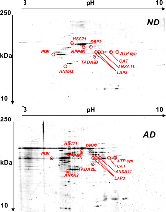 Protein nitration profile of CD3+ lymphocytes from Alzheimer