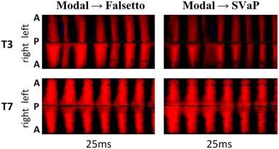 Oscillatory Characteristics of the Vocal Folds Across the