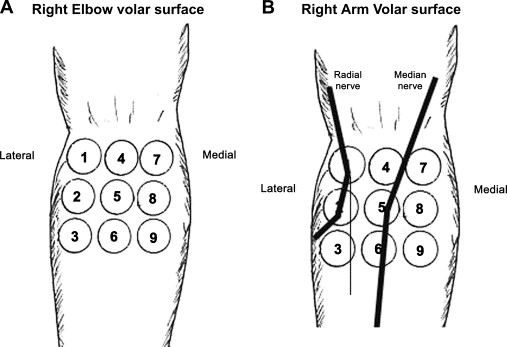 Radial Tunnel Syndrome: A Surgeon\'s Perspective - ScienceDirect