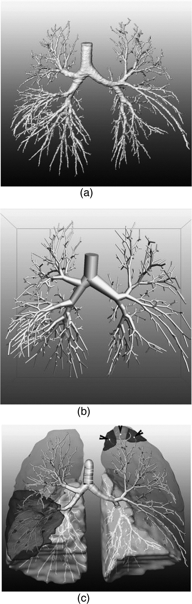 A digital reference model of the human bronchial tree - ScienceDirect