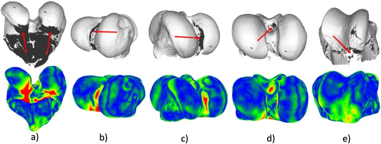 Accurate 3D reconstruction of bony surfaces using ultrasonic