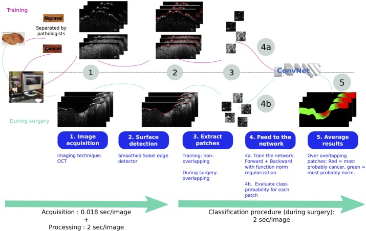 Intraoperative margin assessment of human breast tissue in optical