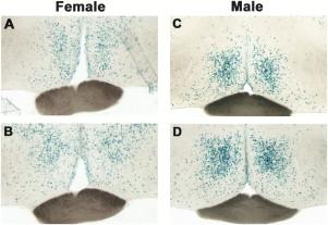 Sexual dimorphisms of the mammalian brain