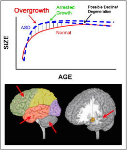In Autism Brain Shows Unusual Thinning >> Mapping Early Brain Development In Autism Sciencedirect
