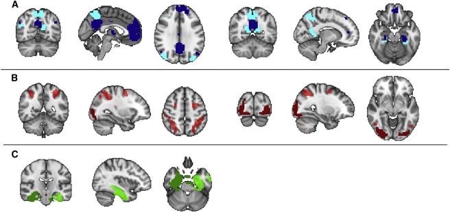 Mnemonic Training Reshapes Brain Networks to Support