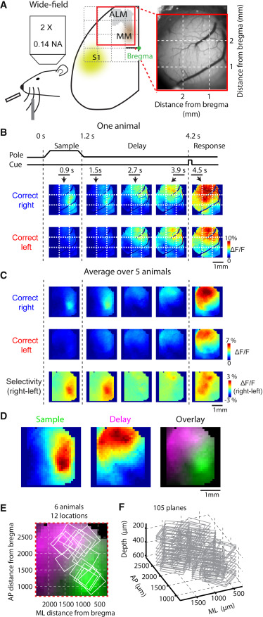 A Map of Anticipatory Activity in Mouse Motor Cortex