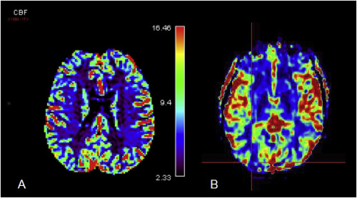 The diagnosis and clinical management of the neuropsychiatric