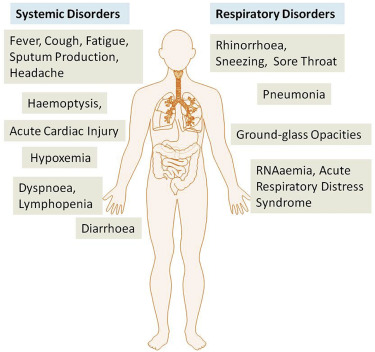 The Epidemiology And Pathogenesis Of Coronavirus Disease Covid 19 Outbreak Sciencedirect