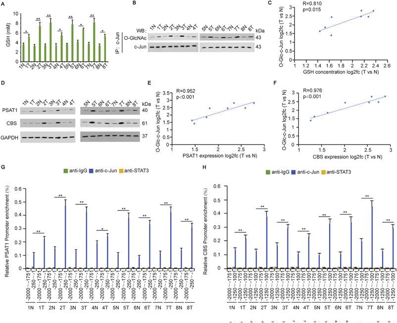 O-GlcNAcylated c-Jun antagonizes ferroptosis via inhibiting